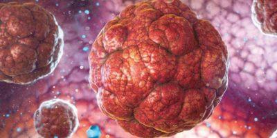 عقار جديد : ثورة في علاج سرطان البروستاتا