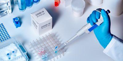 علاج كورونا: العلماء يعملون على 3 سيناريوهات.. والحل قد يكمن في المتعافين