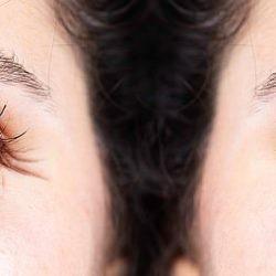 طبيب عيون:لا فائدة لإخفاء عمرك بعد اليوم فالبروتينات في عدسة العين ستفضحك