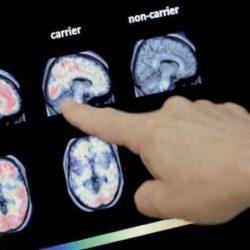 علماء يربطون بين انقطاع التنفس أثناء النوم وألزهايمر