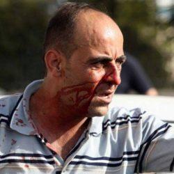 """صحف:وفاة نزار بنات: الاتحاد الأوروبي يطالب بالتحقيق في وفاته، واتهامات فلسطينية """"للسلطة باغتياله"""""""