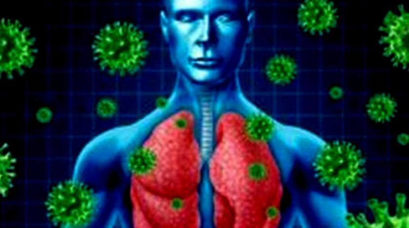 نوع غامض من الالتهاب الرئوي يسببه فيروس كورونا