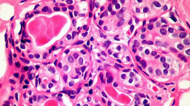 اكتشاف بنظام المناعة لعلاج السرطان بكل أنواعه