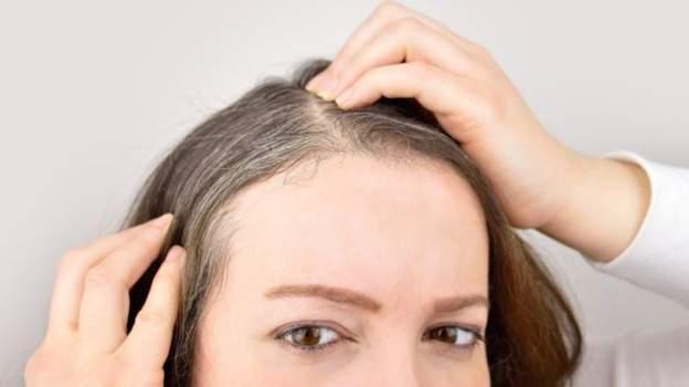 اكتشاف :لماذا يؤدي التوتر إلى تحول الشعر للون الأبيض؟