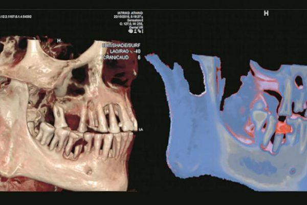 حشو الأسنان المصريون القدماء أول من عرفه