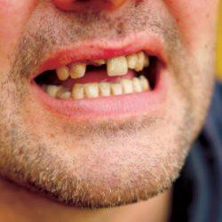 فقد الأسنان يعرض للإصابة بالخرف